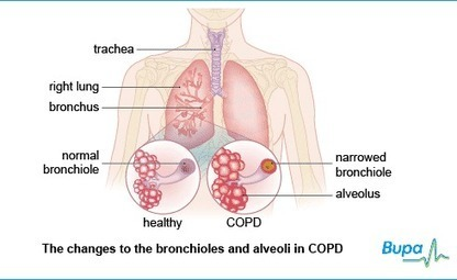 Chronic obstructive pulmonary disease COPD symptoms, causes and treatments | Bupa UK | Chronic Obstructive Airways Disease | Scoop.it