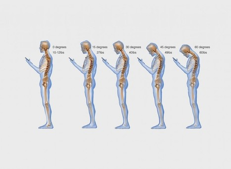 'Text neck' is becoming an 'epidemic' and could wreck your spine | London Pilates Studio | Scoop.it