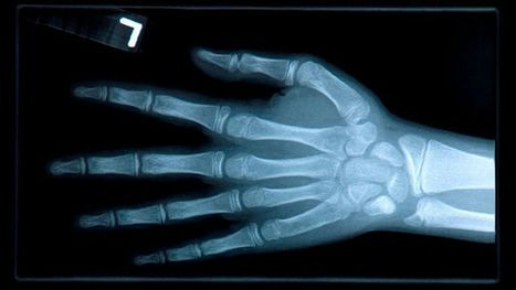 Ostéoporose | Actualités de l'assurance | Scoop.it