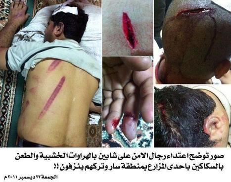 A day in the life of Bahrain:  the injuries of oppression persist!   Human Rights and the Will to be free   Scoop.it