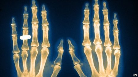 Radiographers to strike over NHS pay   F583 The Economics of work and leisure   Scoop.it