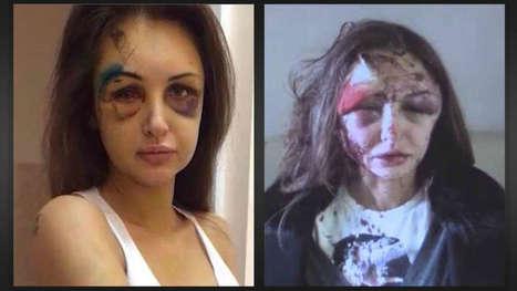 Was muss passieren, damit BILD über häusliche Gewalt berichtet? | Presseschau gegen Partnerschaftsgewalt | Scoop.it