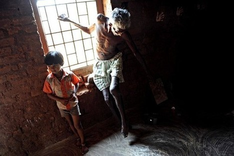 Can the Curse of Leprosy Finally Be Lifted? - Slate Magazine | Virology News | Scoop.it