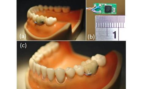 Smart-tooth sensor could tell you when you're eating too much - The Independent | IOT | Scoop.it