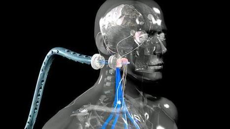 Beyond human: How I became a cyborg | The Transhuman Trek | Scoop.it