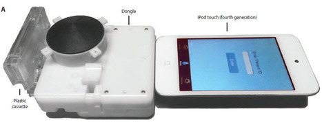 Smartphone add-on tests for HIV and syphilis in 15 minutes   KurzweilAI   The future of medicine and health   Scoop.it