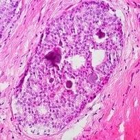 Redefining The Word 'Cancer' | Cancer Survivorship | Scoop.it