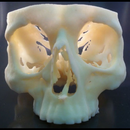 Reducing Surgery Times and Costs - 3D Printing Industry   impression 3D   Scoop.it