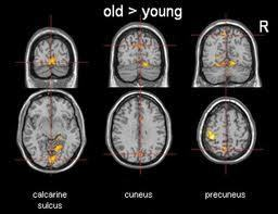 Older Brain Is Willing, but Too Full for New Memories | Amazing Science | Scoop.it