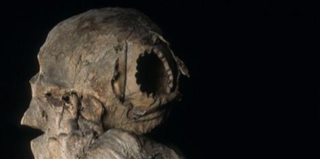 Chez les Incas, on pratiquait la chirurgie sans bistouri | Aux origines | Scoop.it