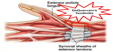 Know About DeQuervain's Tendinitis and Wrist Ganglion   Health & Wellness   Scoop.it