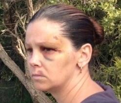 Kids see mum get hurt in road rage attack | Road rage | Scoop.it