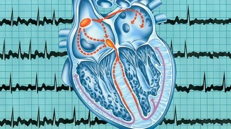 Atrial Fibrillation Patients and Doctors Have a Communication Gap - Everyday Health   Cardiac Arrhythmias   Scoop.it