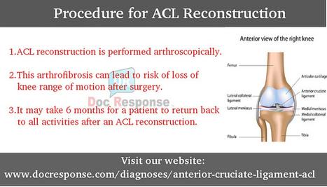 Procedure for ACL Reconstruction | Robert Duke | Scoop.it