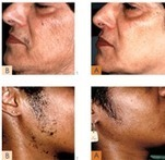Facial Hair Removal | Best hair and Skin care Specialist in Hyderabad | Scoop.it