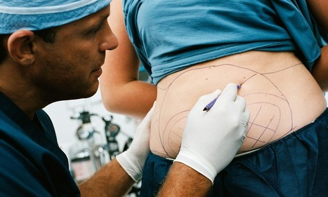 Rise of nip and tuck tourism: Nearly a third of Brits who opt for cosmetic surgery now have their operation abroad | Cosmetic surgery | Scoop.it