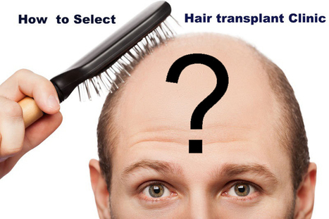 Identifying the Right Hair Transplant Clinic for your Treatment   Hair and Skin   Scoop.it