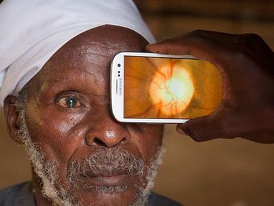Smartphone App to Detect Blindness in Kenya | Afrika | Scoop.it