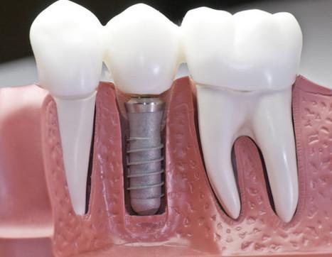 Prothèse (couronne ou bridge) sur implant   Clinique chirurgie et ...   implantologiedentaire   Scoop.it