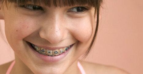 ¿Cómo averiguar si nuestro hijo precisa ortodoncia? - alsalirdelcole | Noticias - ASDC | Scoop.it