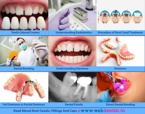 Know All About Root Canals, Fillings And Caps | Dental health conditions, Treatments & remedies. | Scoop.it