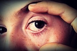 Precautionary Measures to Know if You Have an Eye Problem | Socialized Card | pacificspecialists.com | Scoop.it