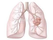 Lungs specialist in Nagpur, India | Chest Care Clinic In India | Scoop.it