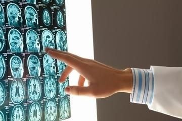 NEURO: Sans ce gène, pas de motricité   Cerveau intelligence   Scoop.it