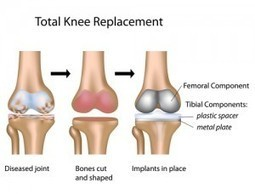 Knee Replacement Recovery Time | Take Care of Your Knees | Scoop.it