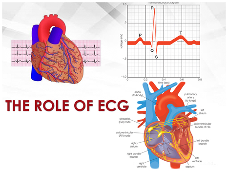 Explore the Atrial Fibrillation and the Role of ECG | Christian Yamashiba Kasongo's medical review | Scoop.it