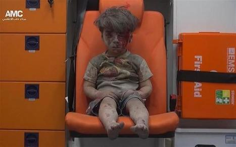 Syria's President Claims This Iconic Photo of an Injured Boy Was Faked | A WORLD OF CONPIRACY, LIES, GREED, DECEIT and WAR | Scoop.it