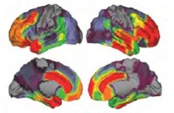 Pour apprendre, le cerveau doit se relâcher   MOOC Francophone   Scoop.it