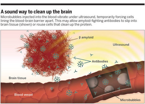 New ultrasound therapy targets brain cancers and Alzheimer's disease | Amazing Science | Scoop.it
