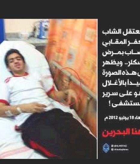 Jaffar Almqabi, suffers from sickle cell anemia, chained to bed in Bahrain hospital | Human Rights and the Will to be free | Scoop.it