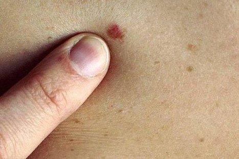 6 señales para identificar el cáncer en la piel | esperity | Scoop.it