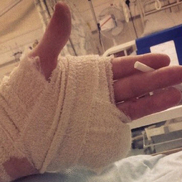 Meet the teen who lost his finger at a rave, kept on dancing anyway | DJing | Scoop.it