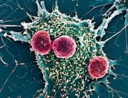 Cancer meets its nemesis in reprogrammed blood cells - 25 November 2013 - New Scientist | The future of medicine and health | Scoop.it