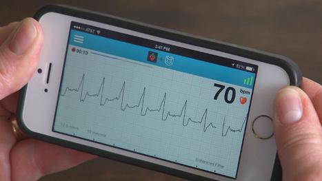 AliveCor Mobile ECG, un electrocardiógrafo en tu bolsillo | Ingeniería Biomédica | Scoop.it