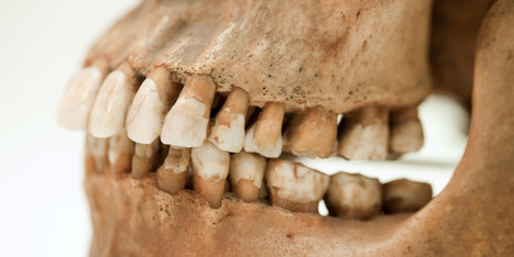 Nocturnal Teeth Grinding May Suggest a Sleep Disorder - Huffington Post | www.thebruxismcommunity.com | Scoop.it