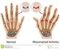 The Right Professional Can Heal You Of Your Rheumatoid Arthritis Pain! | Rheumatologists and Orthopaedic Surgeons | Scoop.it