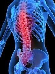 Types Of Back Pain In Kolkata | Health | Scoop.it