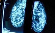 Breast cancer screening cannot be justified, says researcher - The Guardian   CancerDataScience   Scoop.it