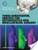 Three-Dimensional Imaging for Orthodontics and Maxillofacial Surgery | 3D Maxillofacial Imaging | Scoop.it