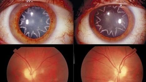 Hombre desarrolla cataratas en los ojos en forma de estrellas | El cuidado de los ojos y de la visión | Scoop.it