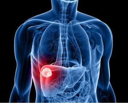 Hepatite - Causas, Sintomas e Tratamentos | Minha Vida | hepatite c | Scoop.it