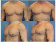 Male Breast Reduction, Gynecomastia Thailand - Urban Beauty Thailand | Affordable Liposuction bangkok | Scoop.it