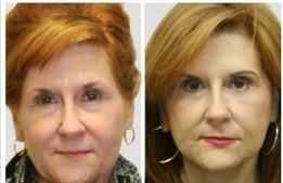 Understanding The Asian Eyelid Surgery | Jennifer Levine | Scoop.it