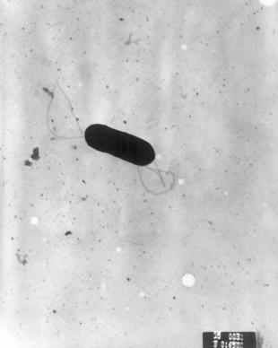Nuevo sistema para detectar la 'Listeria' en superficies industriales | Microbiología Industrial | Scoop.it