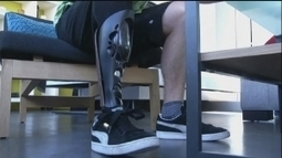 Printed prosthetics | Additive Manufacturing News | Scoop.it