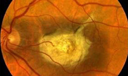 Human stem cell-derived retinal cells for macular diseases improves vision of nearly blind | Amazing Science | Scoop.it